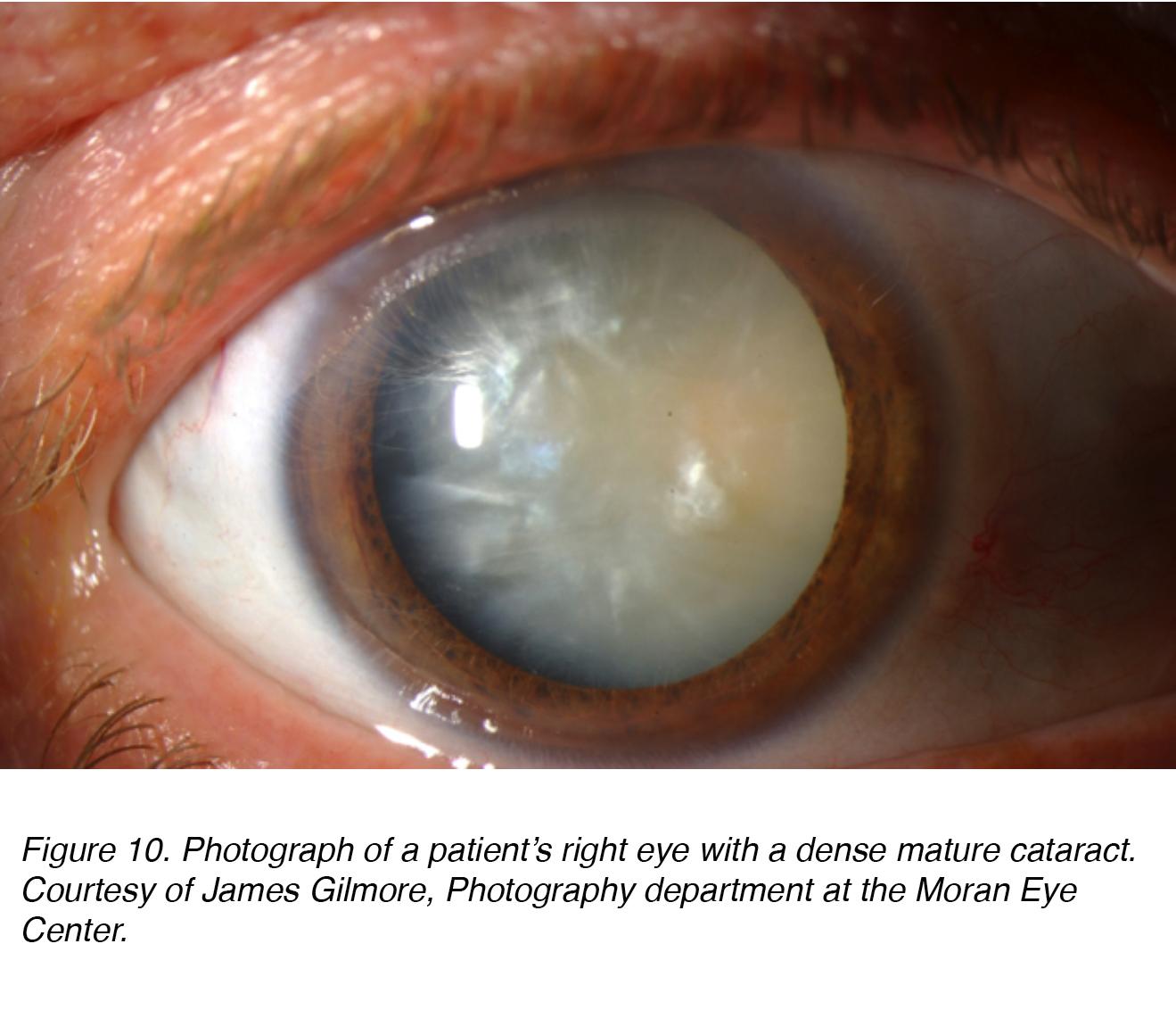 Mature cataract journal