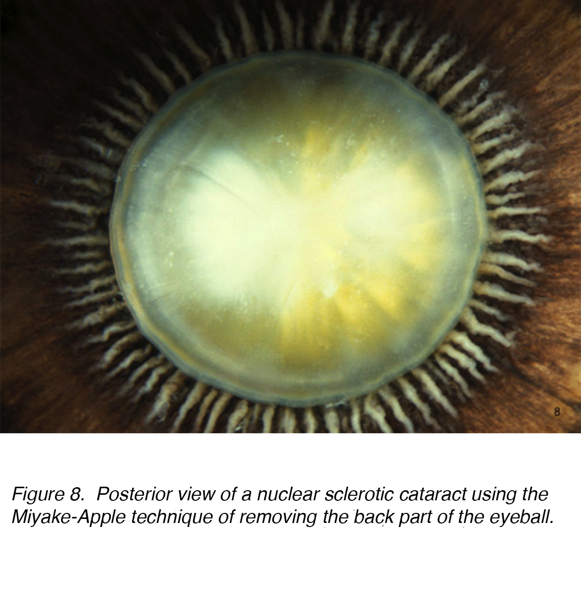 131 Crystalline Lens And Cataract By Joah F Aliancy And Nick