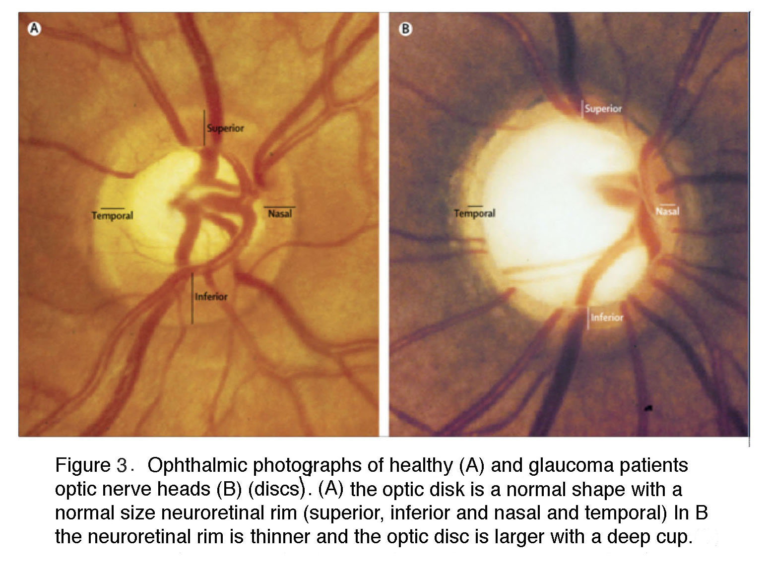 12 5 What is glaucoma? By David Križaj - Webvision